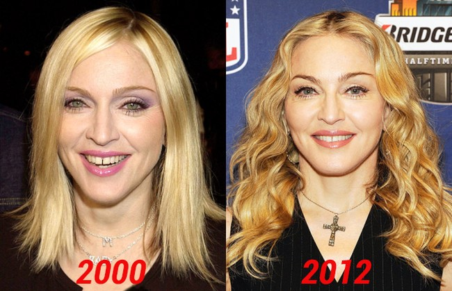 Madonna stay young thanks to plastic surgery