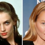 Uma Thurman Plastic Surgery Before and After 150x150