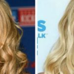 aubrey oday before and after nose job an lipfillers 150x150