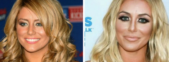 aubrey oday before and after nose job an lipfillers