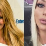 aubrey o'day lip implants or just a makeup