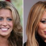 aubrey o'day plastic surgery before and after