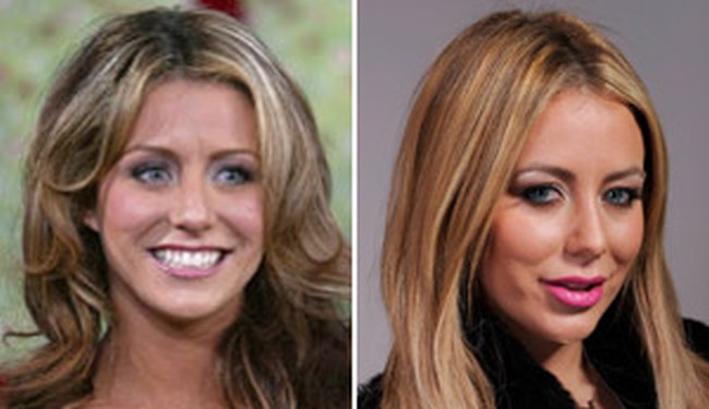 aubrey oday plastic surgery before and after
