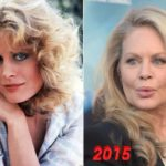 Beverly DAngelo Lip Implants Before and After 150x150