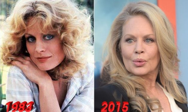 Beverly D'Angelo Plastic Surgery True or Just Speculations?