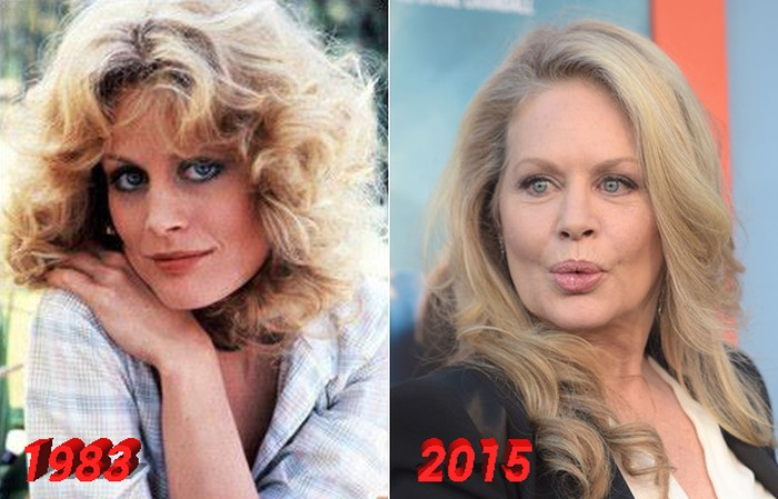 Beverly D'Angelo Lip Implants Before and After