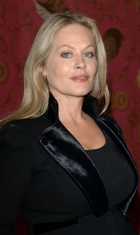 Beverly DAngelo Lip Implants