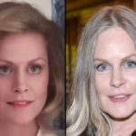 Beverly DAngelo Plastic Surgery Before and After 150x150