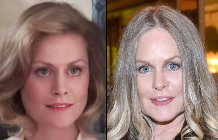 Beverly DAngelo Plastic Surgery Before and After