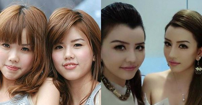 Korean Celebrity Plastic Surgery Before After