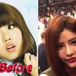 By2 before and after plastic surgery