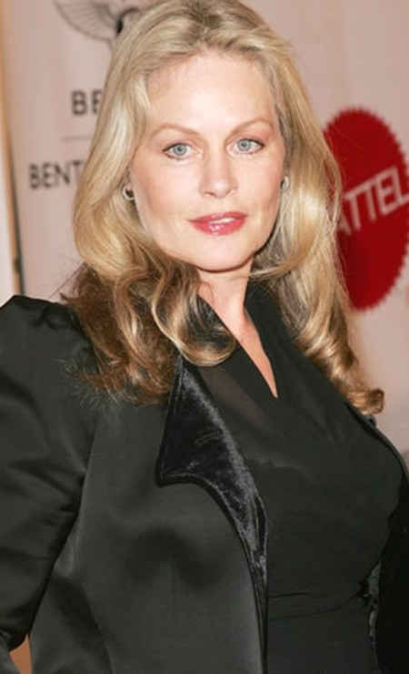 Has Beverly DAngelo used Botox