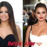 Selena Gomez before and after breast augmentation and nose job