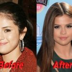 Selena Gomez before and after nose job 150x150