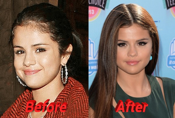 Selena Gomez before and after nose job
