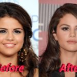 Selena Gomez nose job before and after