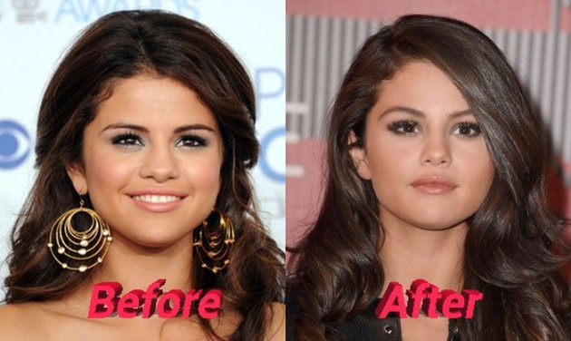 Selena Gomez nose job before and after 630x376