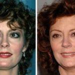 Susan Sarandon Before and After Plastic Surgery