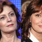 Susan Sarandon Plastic Surgery before and after facelift 150x150