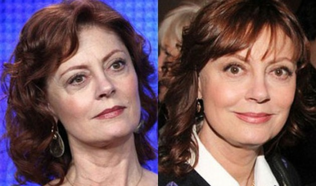 Susan Sarandon Plastic Surgery before and after facelift 630x371