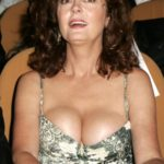 Susan Sarandon after plastic surgery 150x150