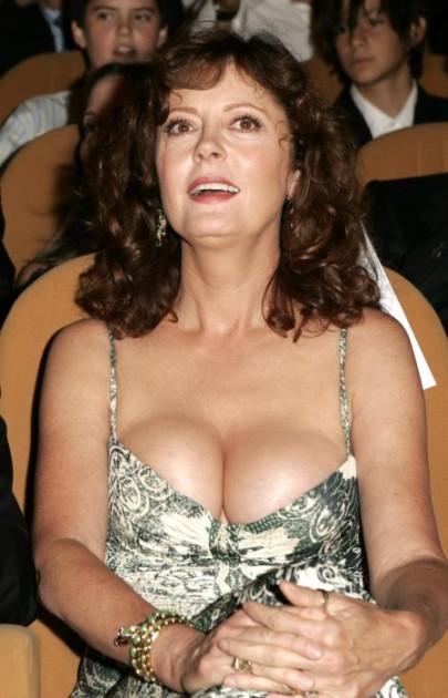 Susan Sarandon after plastic surgery 405x630