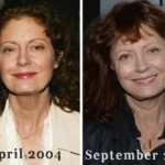 Susan Sarandon before and after 150x150