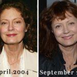 Susan Sarandon before and after