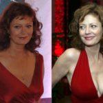 Susan Sarandon before and after boob job