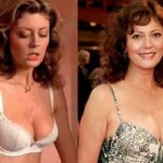Susan Sarandon before and after breast augmentation plastic surgery