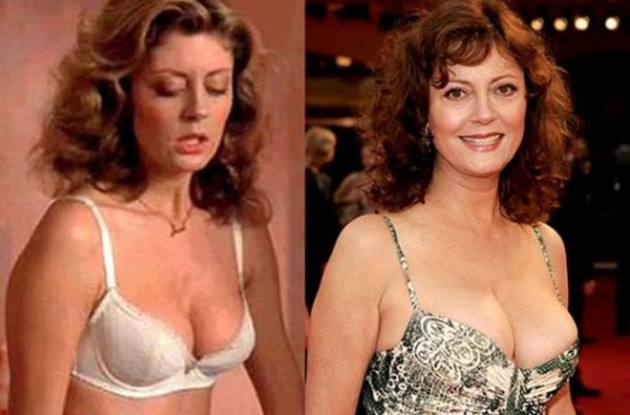 Susan Sarandon before and after breast augmentation plastic surgery 630x415