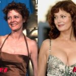 Susan Sarandon before and after breast implants