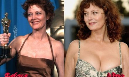 Susan Sarandon Plastic Surgery: Success Or Fail?