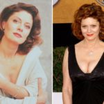 Susan Sarandon plastic surgery before and after 150x150