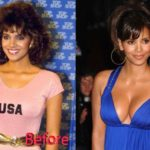 halle berry before and after breast implants 150x150