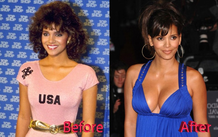 halle berry before and after breast implants