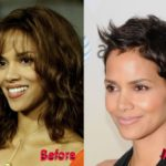 halle berry nose job surgery before and after 150x150