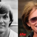 Bruce Jenner Before and After Plastic Surgery 150x150