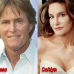 Bruce Jenner Caitlyn Jenner Plastic surgery
