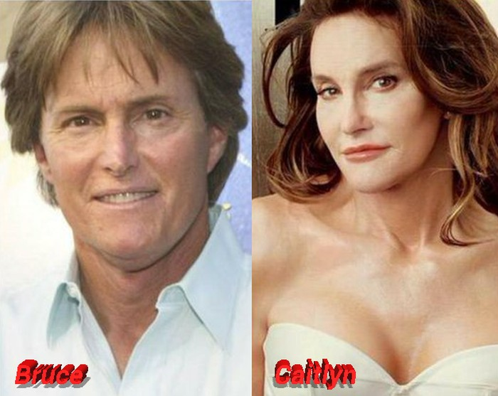 After and bruce jenner pictures before