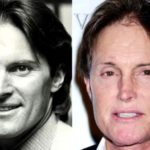 Bruce Jenner Plastic Surgery Before and After 150x150