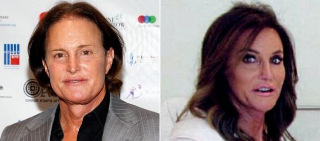 Bruce Jenner Plastic Surgery Transform him to Caitlyn 630x277