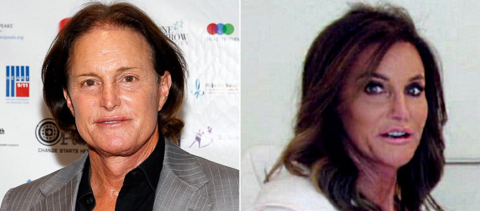 Bruce Jenner Plastic Surgery Transform him to Caitlyn