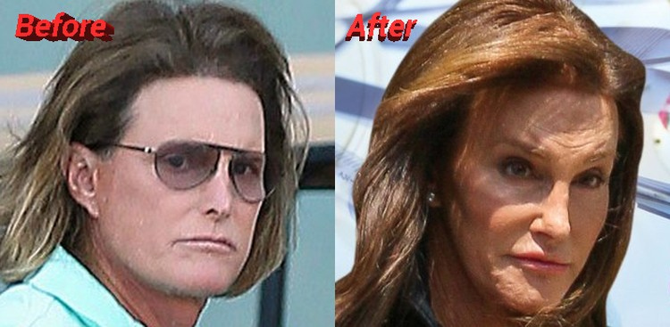 Bruce Jenner before and after sex change