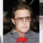 Caitlyn Bruce Jenner sex change plastic surgery 150x150
