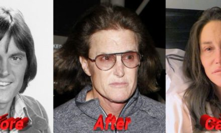 Bruce Jenner Plastic Surgery: From Male Athlete to Female Star