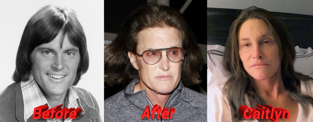 Caitlyn Bruce Jenner sex change plastic surgery