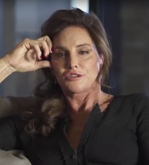 Caitlyn Jenner plastic surgery gone wrong