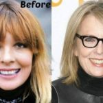 Diane Keaton Before and After 150x150