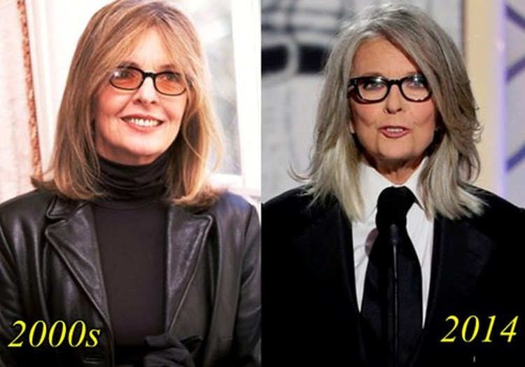 Diane Keaton Before and After 2